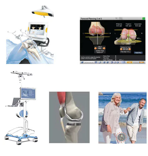 Computer-assisted surgery for Joint Replacement